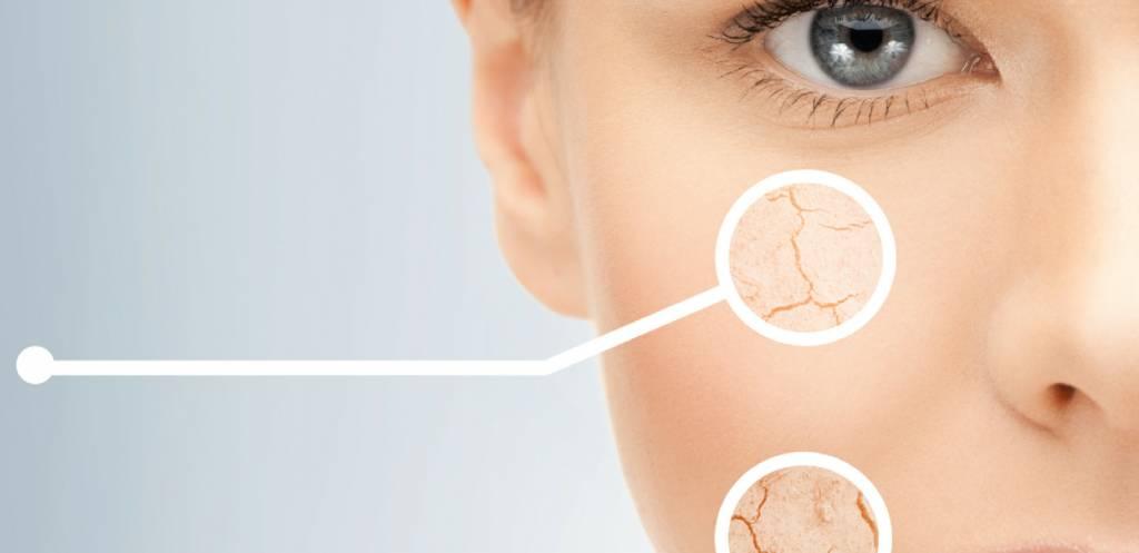 Hoe verzorg je een uitgedroogde huid?