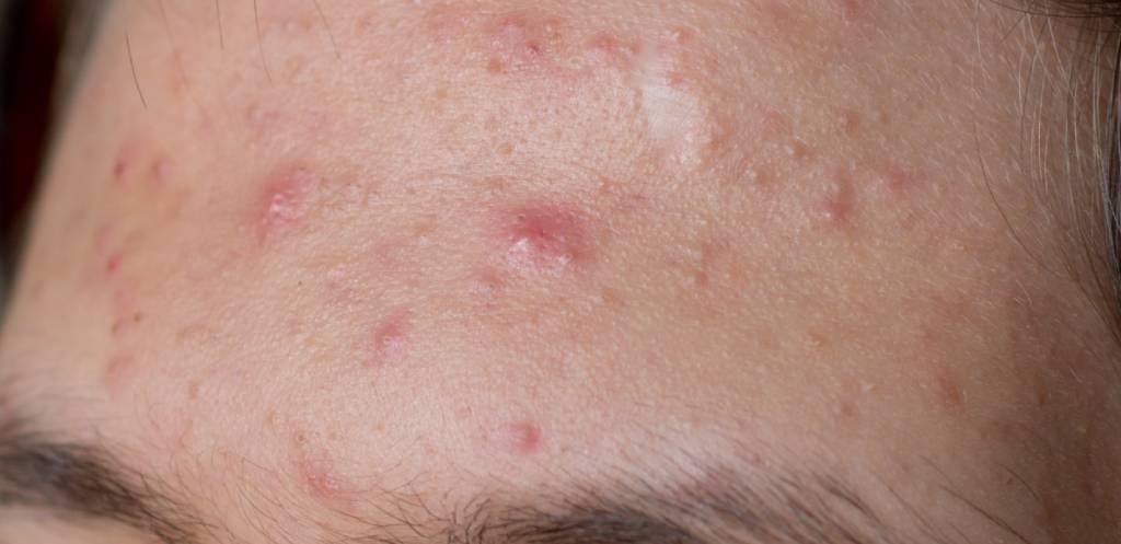 Alles wat je wilt weten over een acnebehandeling