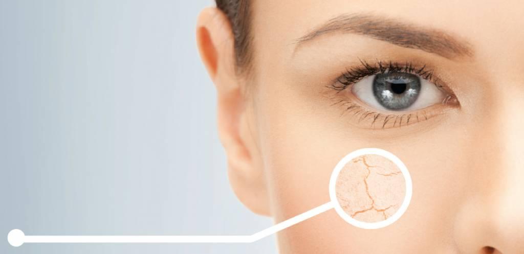 Niacinamide: een wonderstofje voor je huid