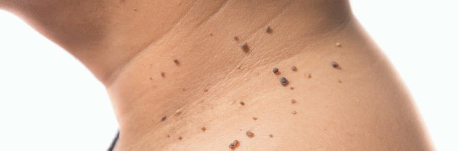 overgang huidproblemen