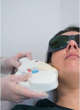 Laserbehandeling Rosacea en Couperose