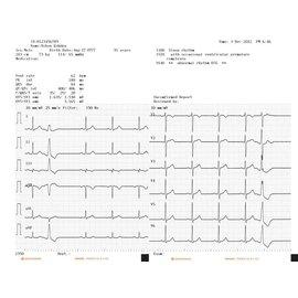 Nihon Kohden Registratiepapier Cardiofax M