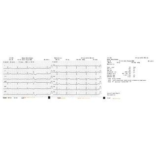 Nihon Kohden Registratiepapier Cardiofax S, Z-fold, 110mm x 20mm