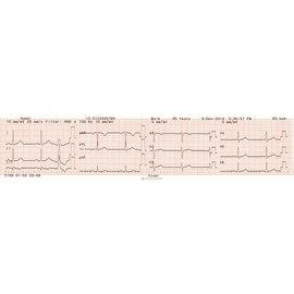 Nihon Kohden Registratiepapier Cardiofax C