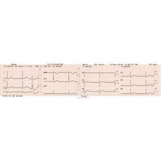 Nihon Kohden Registratiepapier Cardiofax C, Roll, 63mm x 30m