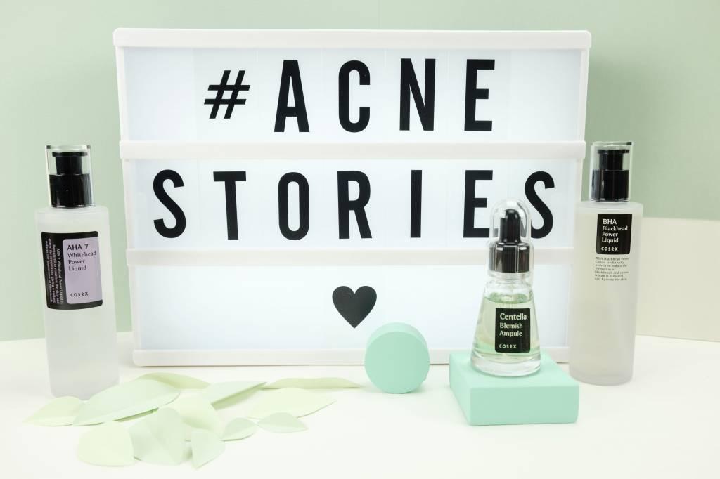 Acne stories - hoe kom je van je meeëters en onderhuidse puistjes af
