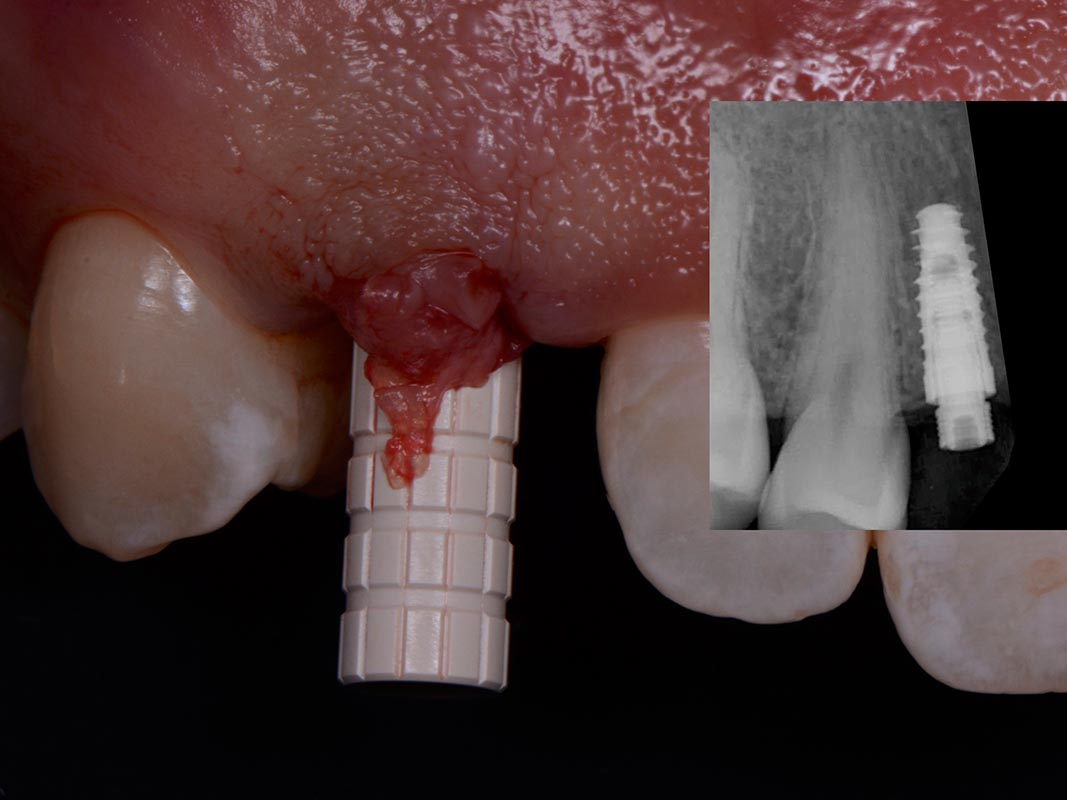 Implant and temporary cylinders