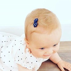 Cute Baby Hair Clips