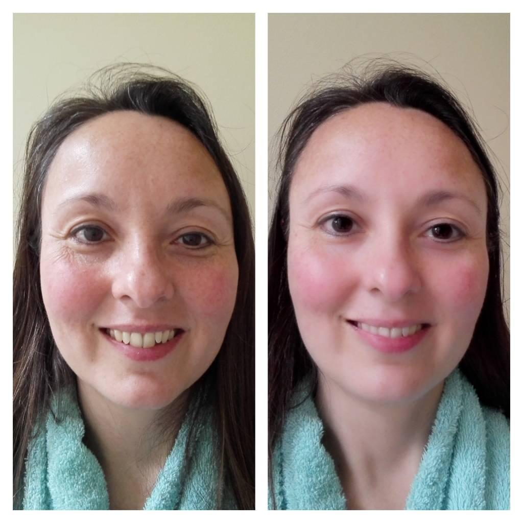 De resultaten van de Utsukusy Bijin facial cleanser cream