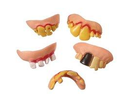 Fake Teeth 5 Pieces