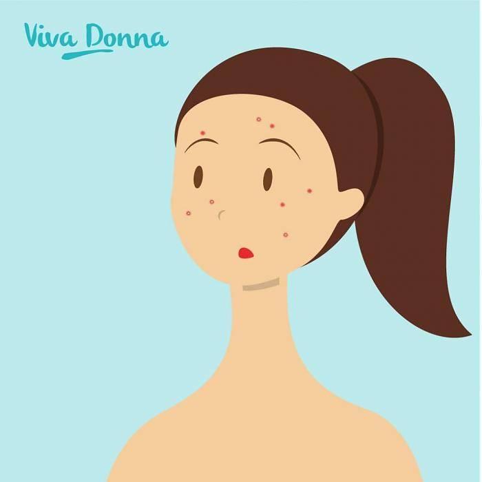 Huidverbetering van Acne