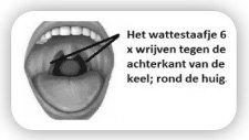 Uitstrijkje keel